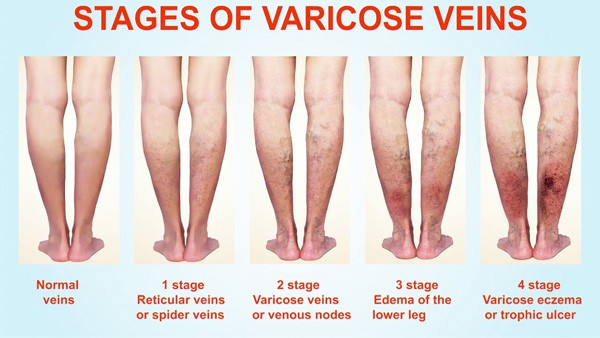 HEAL PAINFUL VARICOSE VEINS